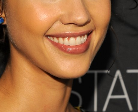 13 Best Smile Transformations images | Celebrity smiles ...
