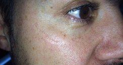 JK's facial scar